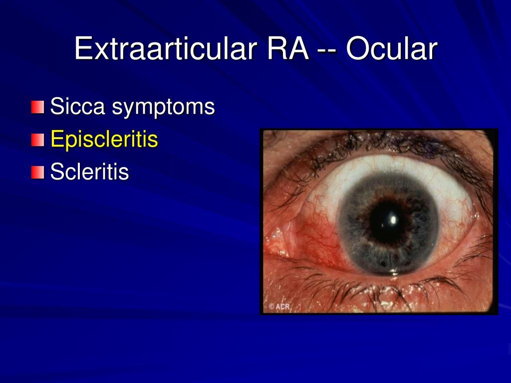 Extraarticular RA -- Ocular