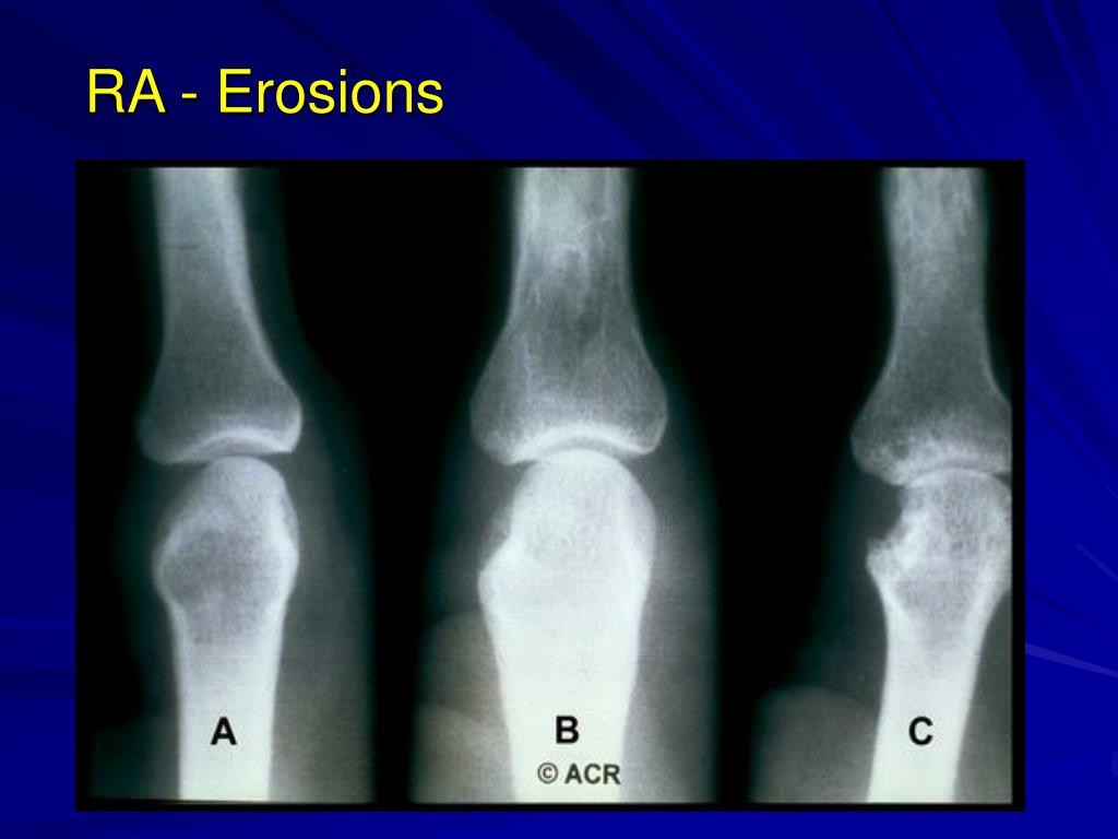 RA - Erosions