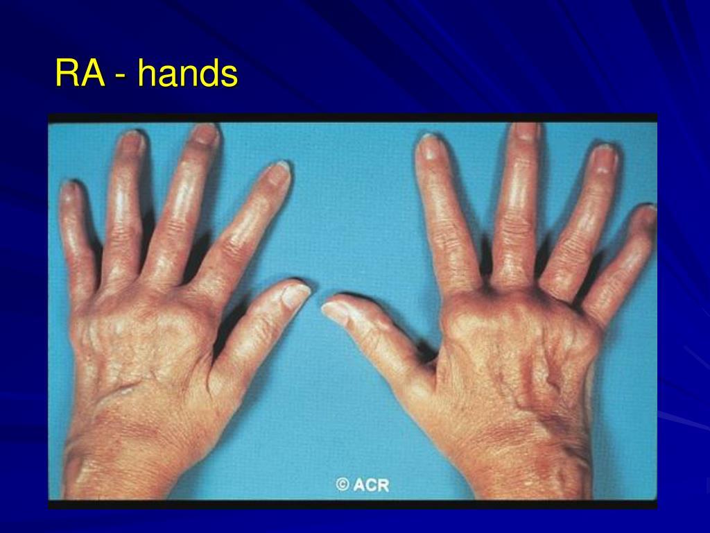RA - hands