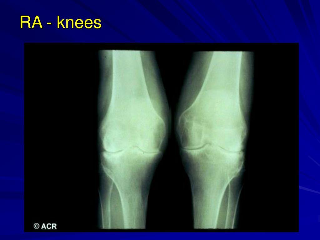 RA - knees