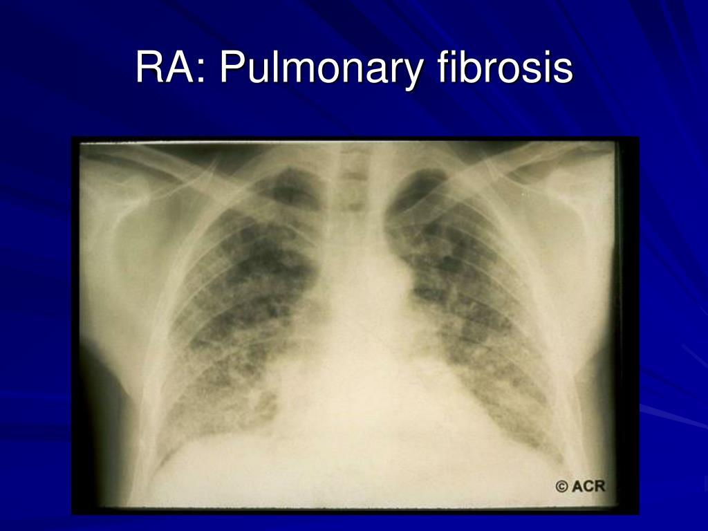 RA: Pulmonary fibrosis