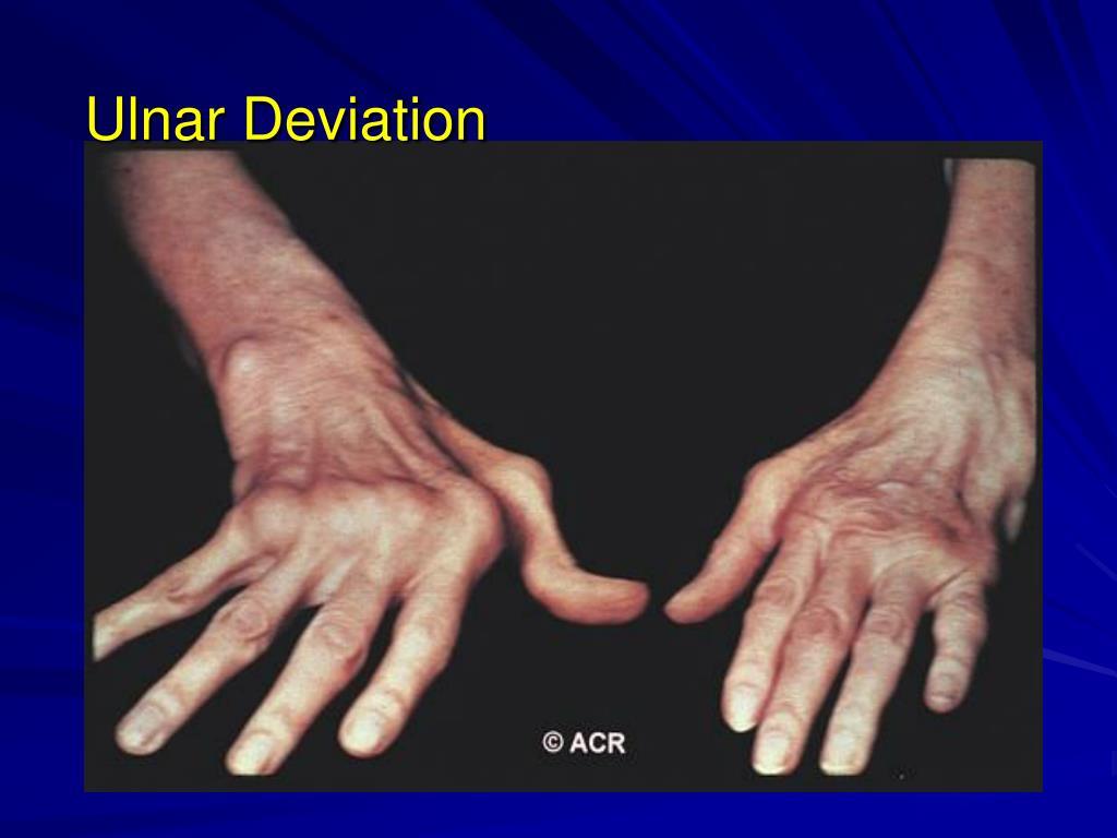 Ulnar Deviation