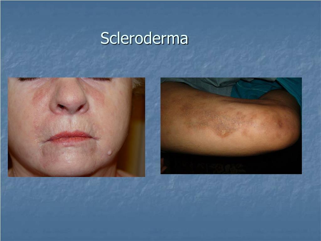 Scleroderma