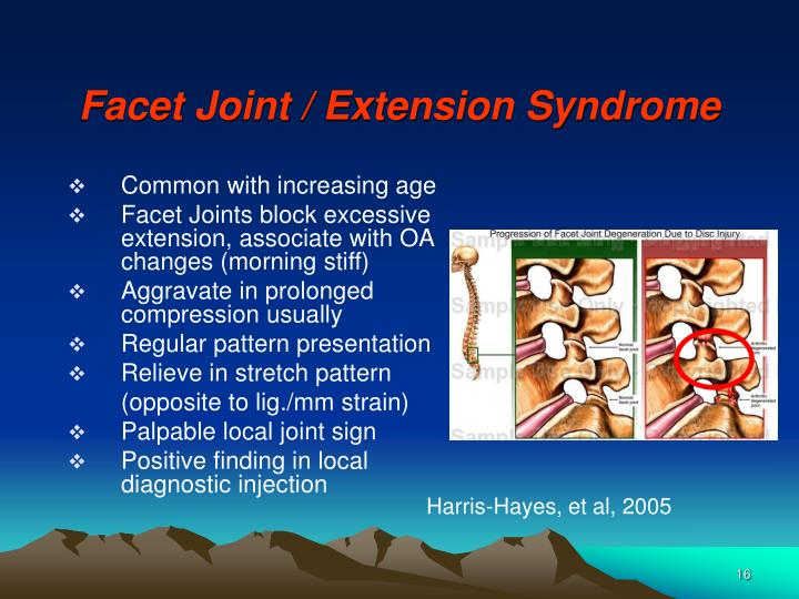Facet Joint / Extension Syndrome