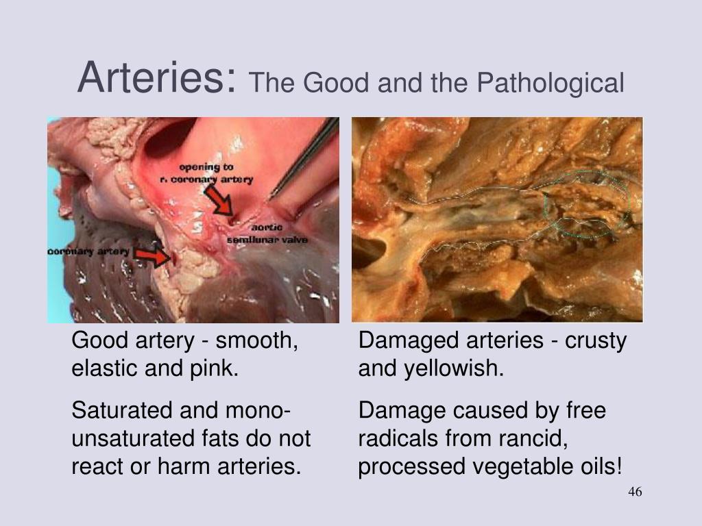 Arteries: