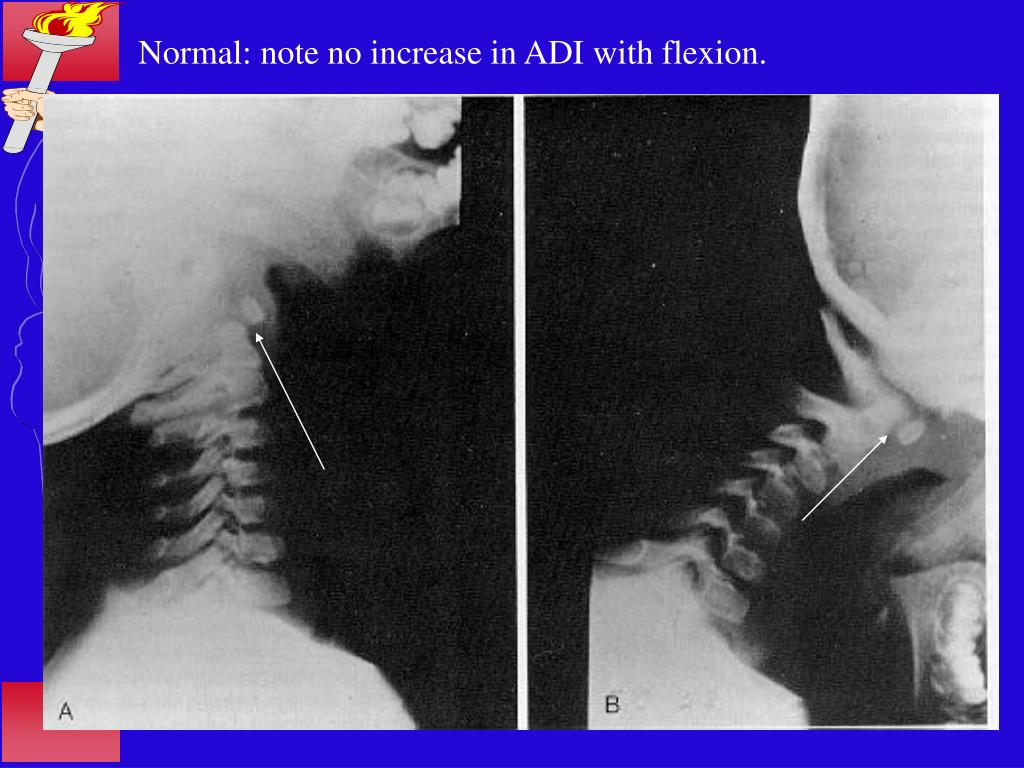 Normal: note no increase in ADI with flexion.