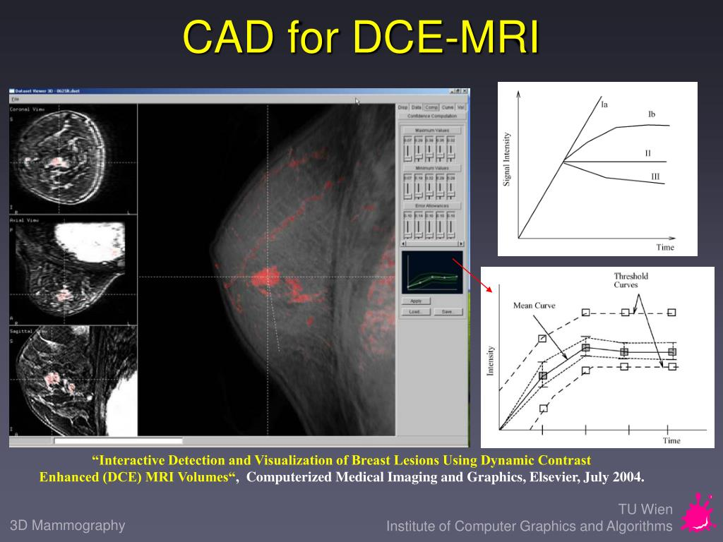 CAD for DCE-MRI