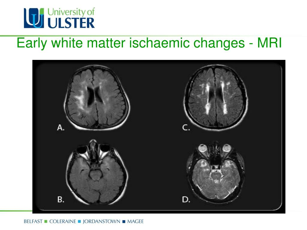 Early white matter ischaemic changes - MRI