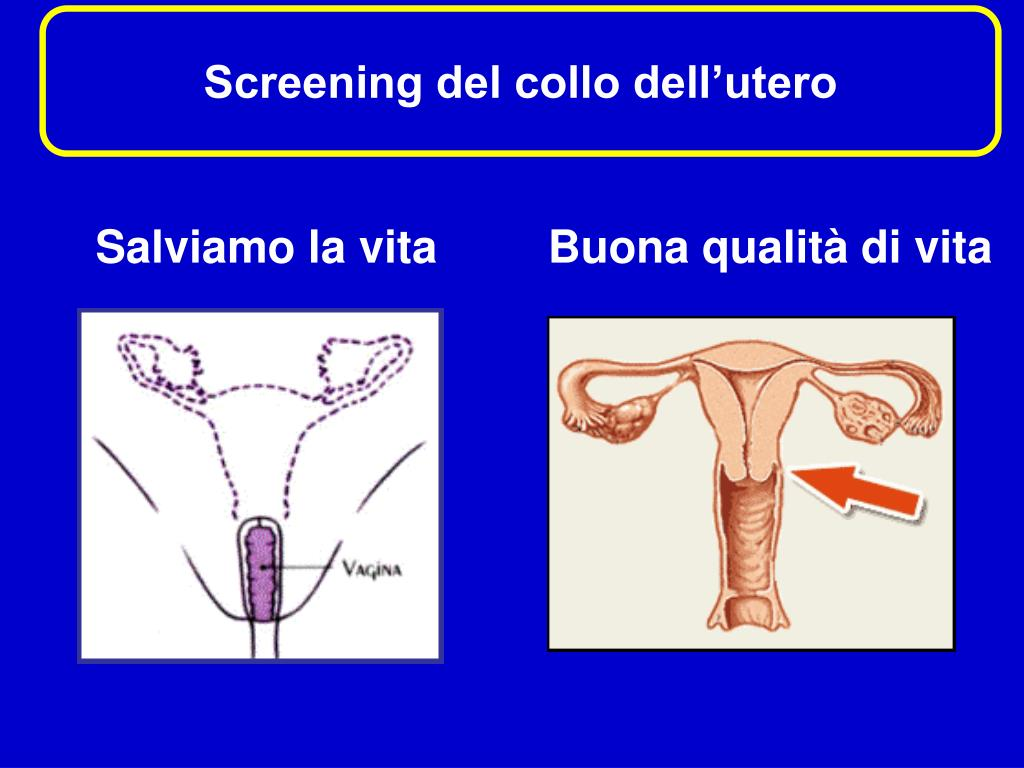 Screening del collo dell'utero