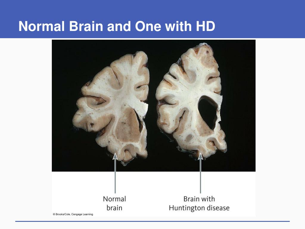 Normal Brain and One with HD