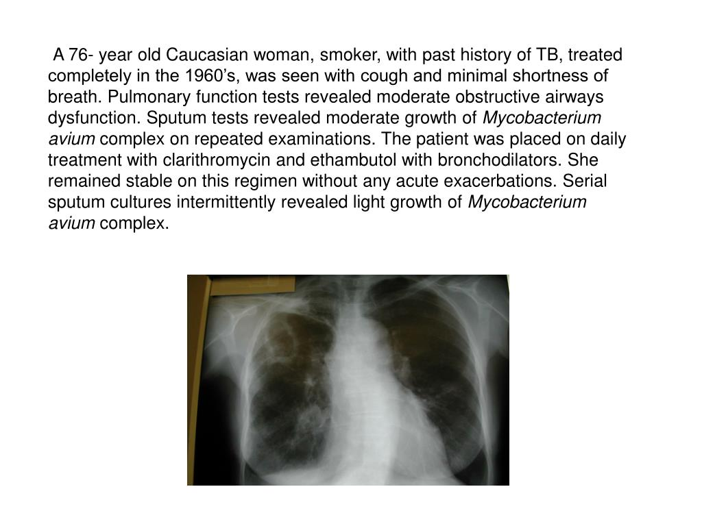 A 76- year old Caucasian woman, smoker, with past history of TB, treated completely in the 1960's, was seen with cough and minimal shortness of breath. Pulmonary function tests revealed moderate obstructive airways dysfunction. Sputum tests revealed moderate growth of