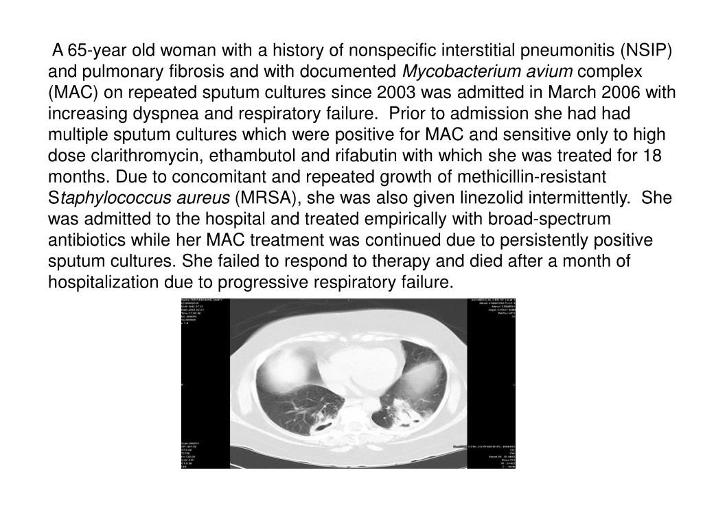 A 65-year old woman with a history of nonspecific interstitial pneumonitis (NSIP) and pulmonary fibrosis and with documented