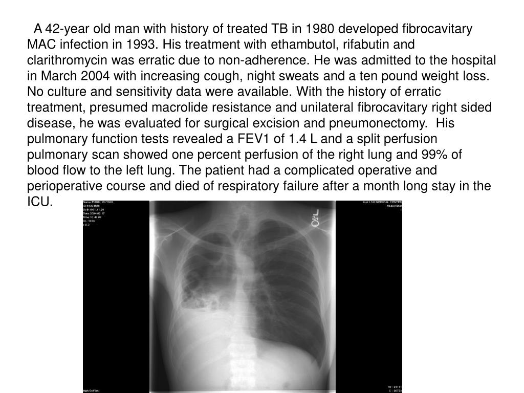 A 42-year old man with history of treated TB in 1980 developed fibrocavitary MAC infection in 1993. His treatment with ethambutol, rifabutin and clarithromycin was erratic due to non-adherence. He was admitted to the hospital in March 2004 with increasing cough, night sweats and a ten pound weight loss. No culture and sensitivity data were available. With the history of erratic treatment, presumed macrolide resistance and unilateral fibrocavitary right sided disease, he was evaluated for surgical excision and pneumonectomy.  His pulmonary function tests revealed a FEV1 of 1.4 L and a split perfusion pulmonary scan showed one percent perfusion of the right lung and 99% of blood flow to the left lung. The patient had a complicated operative and perioperative course and died of respiratory failure after a month long stay in the ICU.