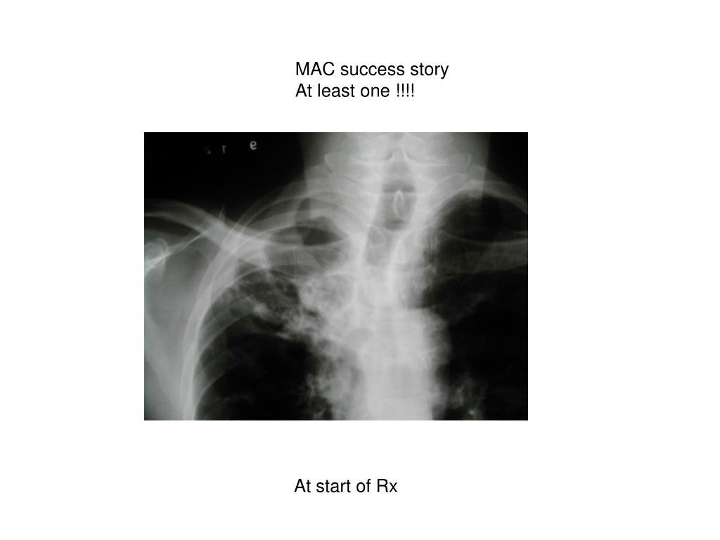 MAC success story