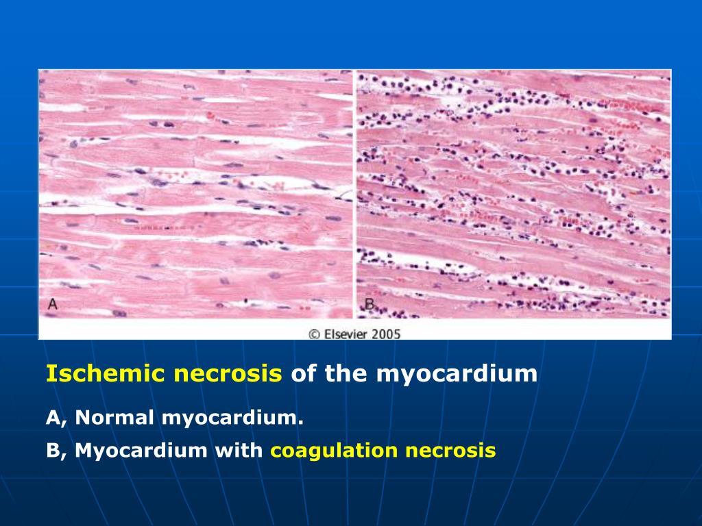 Ischemic necrosis