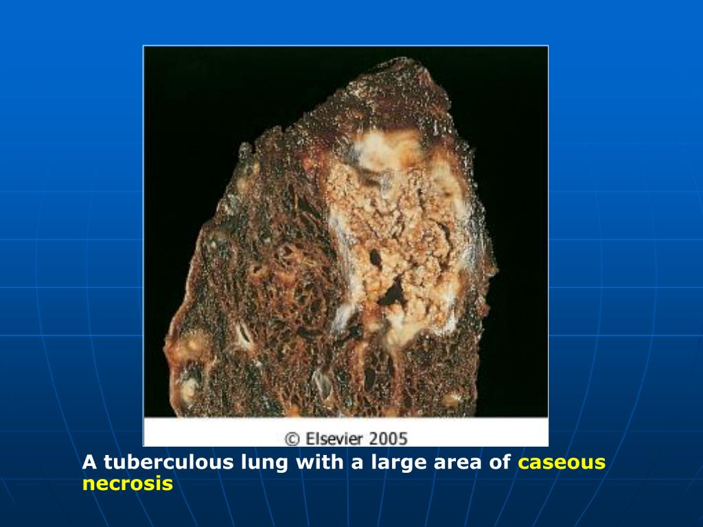 A tuberculous lung with a large area of