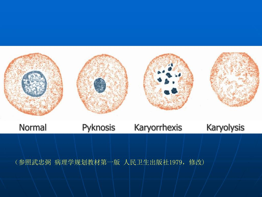 Normal             Pyknosis       Karyorrhexis         Karyolysis