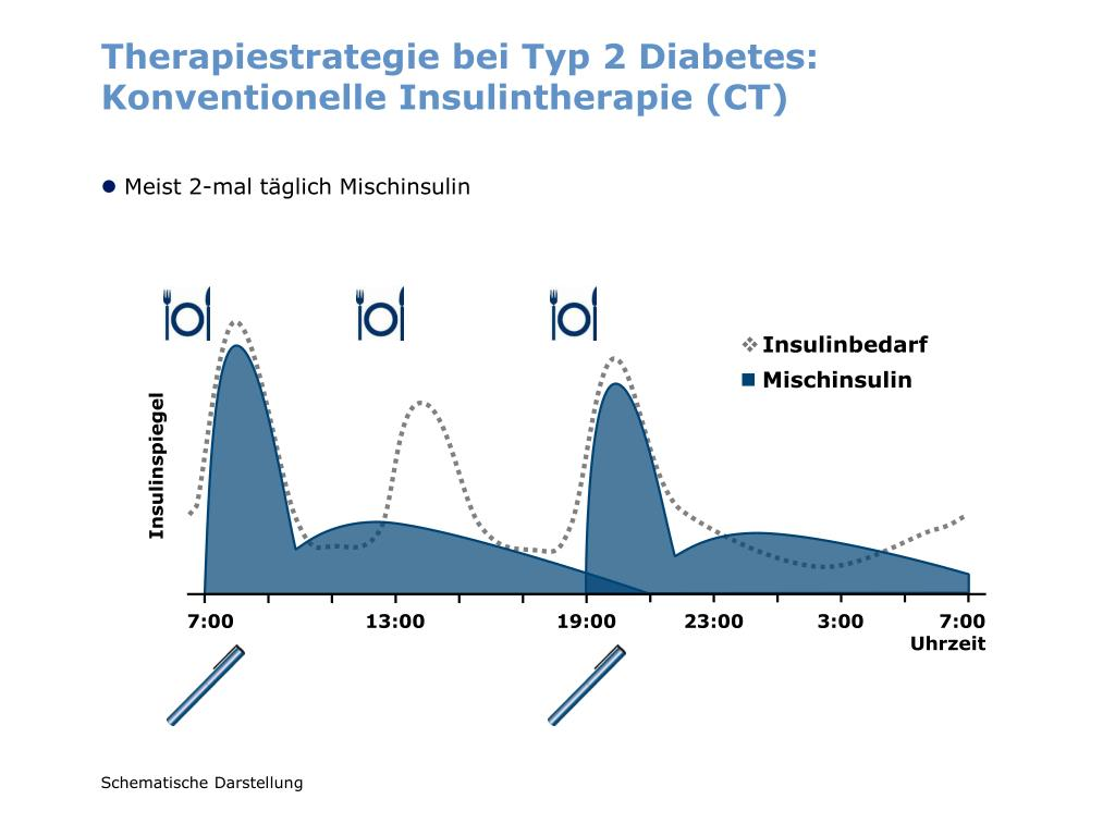 Therapiestrategie bei Typ 2 Diabetes: