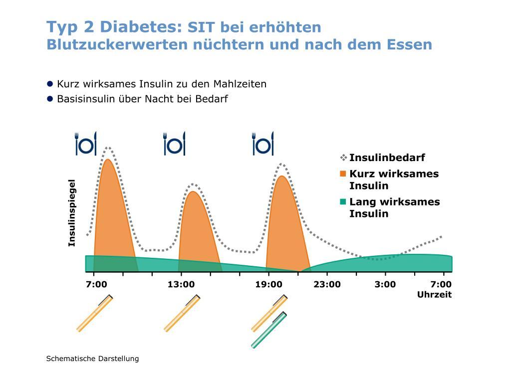 Typ 2 Diabetes: