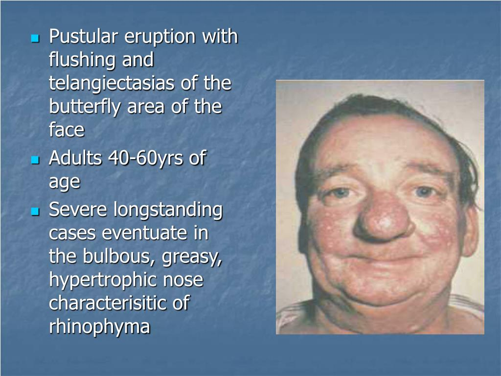 Pustular eruption with flushing and telangiectasias of the butterfly area of the face