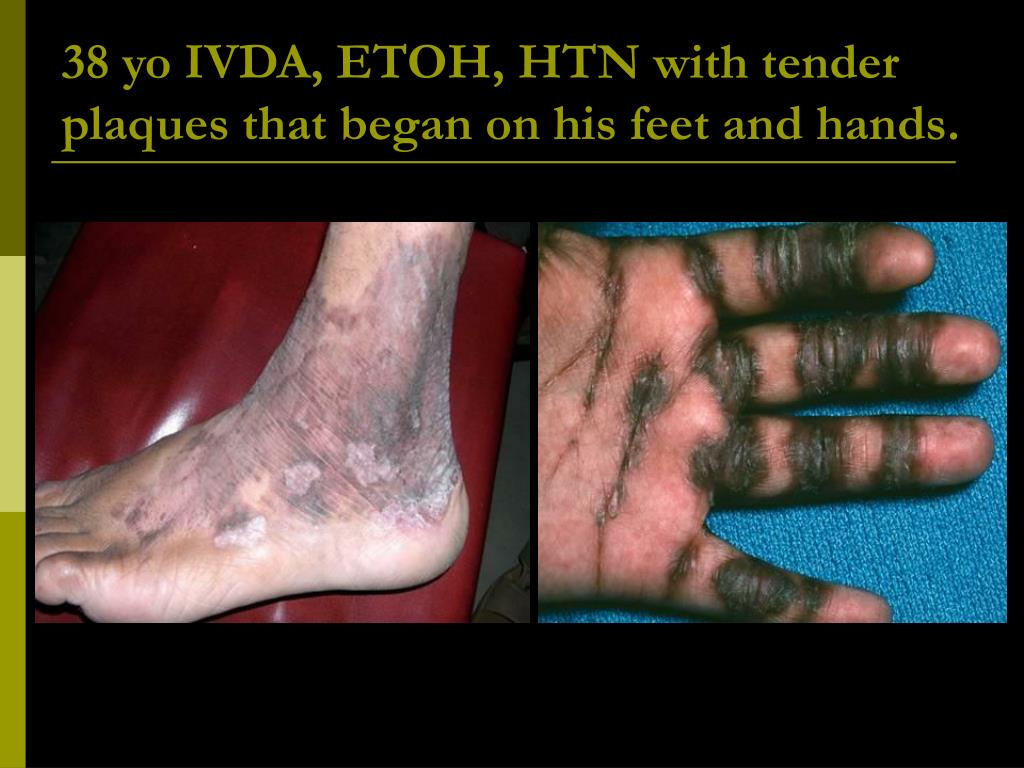 38 yo IVDA, ETOH, HTN with tender plaques that began on his feet and hands.