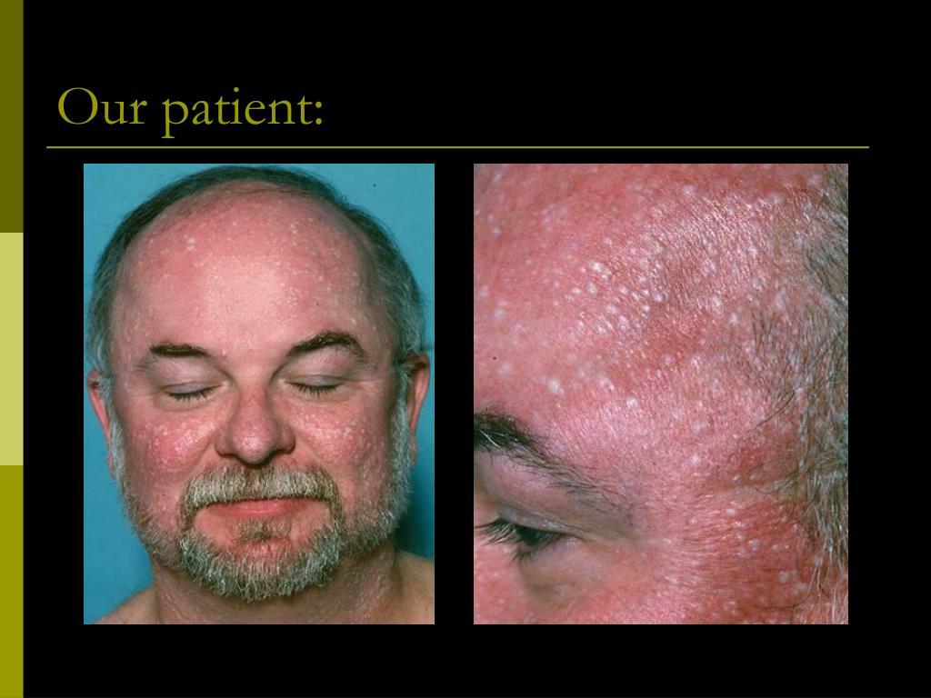 Our patient: