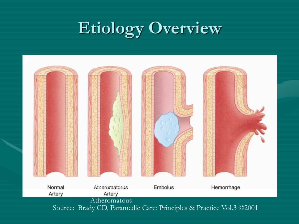 Etiology Overview