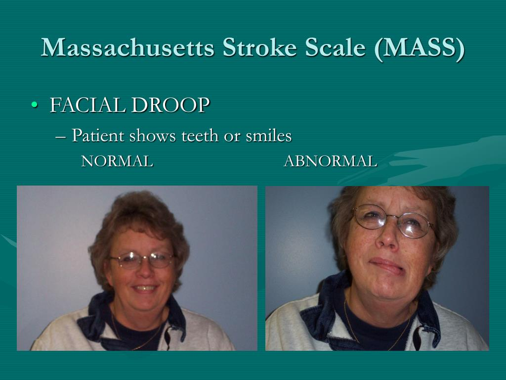 Massachusetts Stroke Scale (MASS)