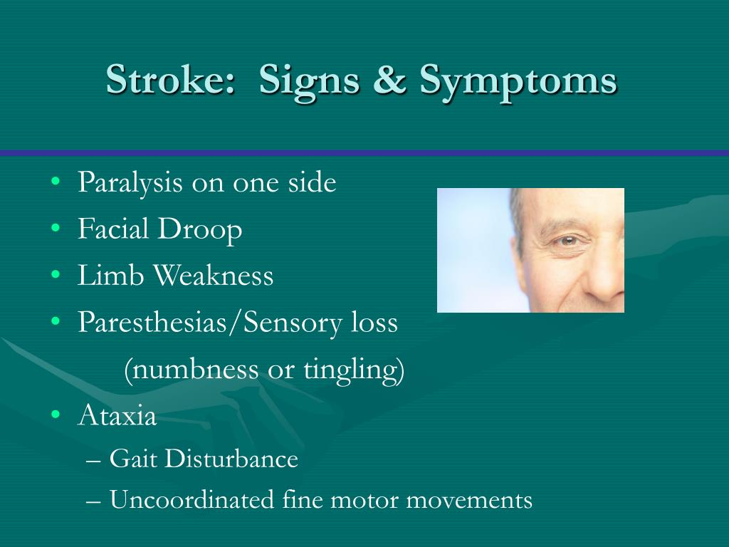 Stroke:  Signs & Symptoms