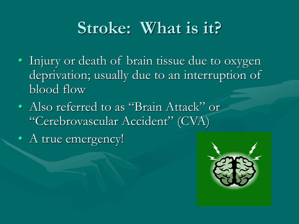 Stroke:  What is it?