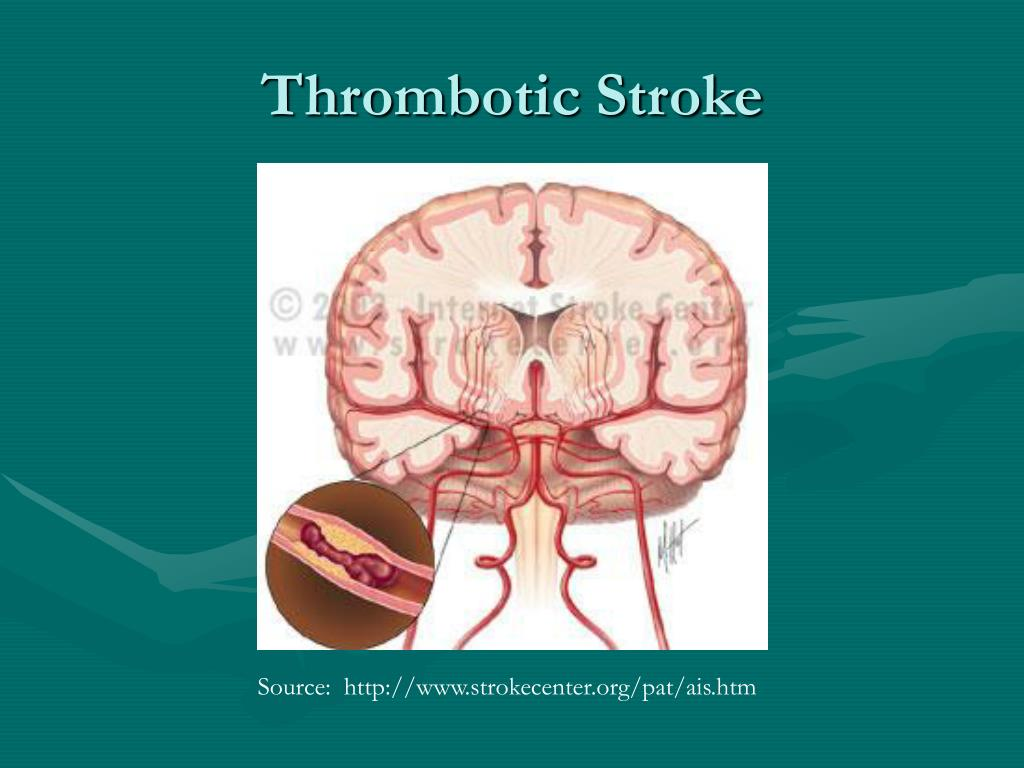 Thrombotic Stroke