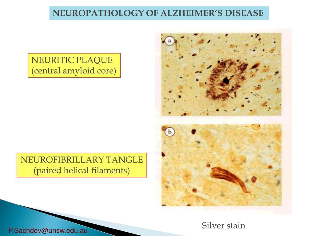 NEUROPATHOLOGY OF ALZHEIMER'S DISEASE