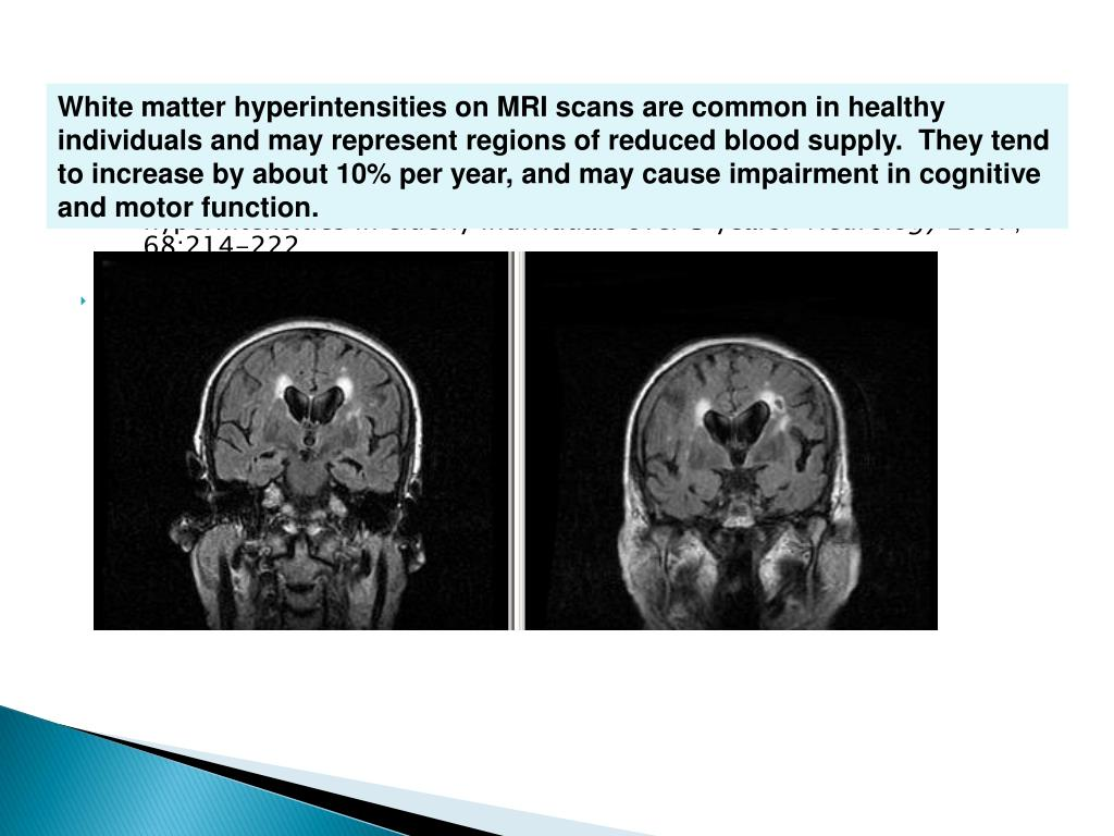 White matter hyperintensities on MRI scans are common in healthy individuals and may represent regions of reduced blood supply.  They tend to increase by about 10% per year, and may cause impairment in cognitive and motor function.