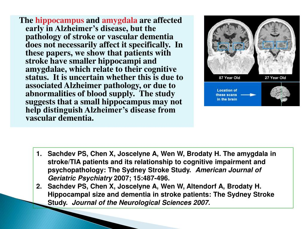 Sachdev PS, Chen X, Joscelyne A, Wen W, Brodaty H. The amygdala in stroke/TIA patients and its relationship to cognitive impairment and psychopathology: The Sydney Stroke Study.