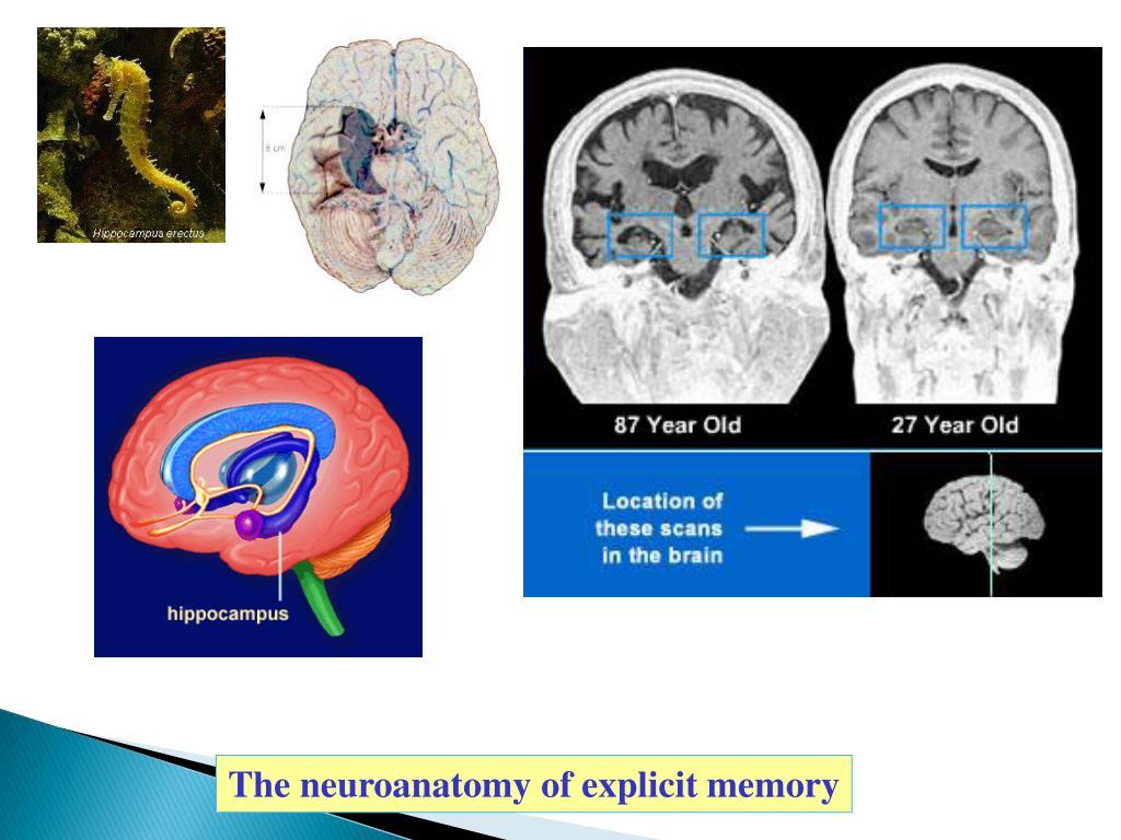 The neuroanatomy of explicit memory