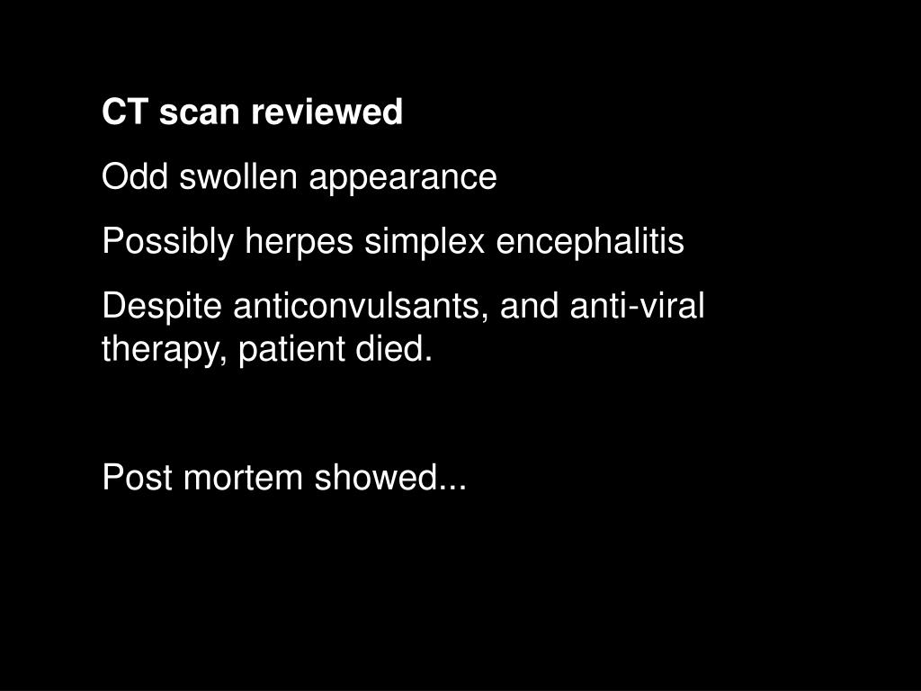 CT scan reviewed