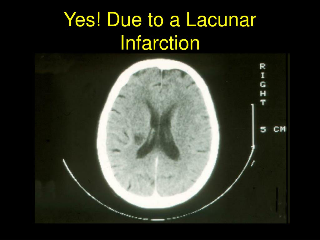 Yes! Due to a Lacunar Infarction