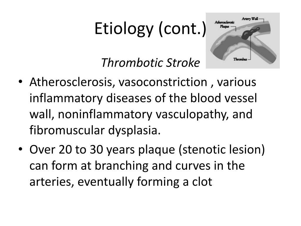 Etiology (cont.)
