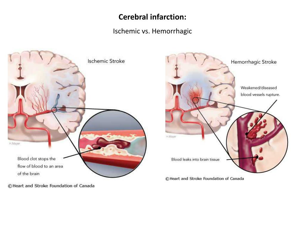 Cerebral infarction: