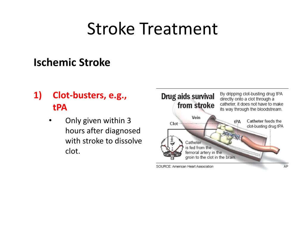 Stroke Treatment