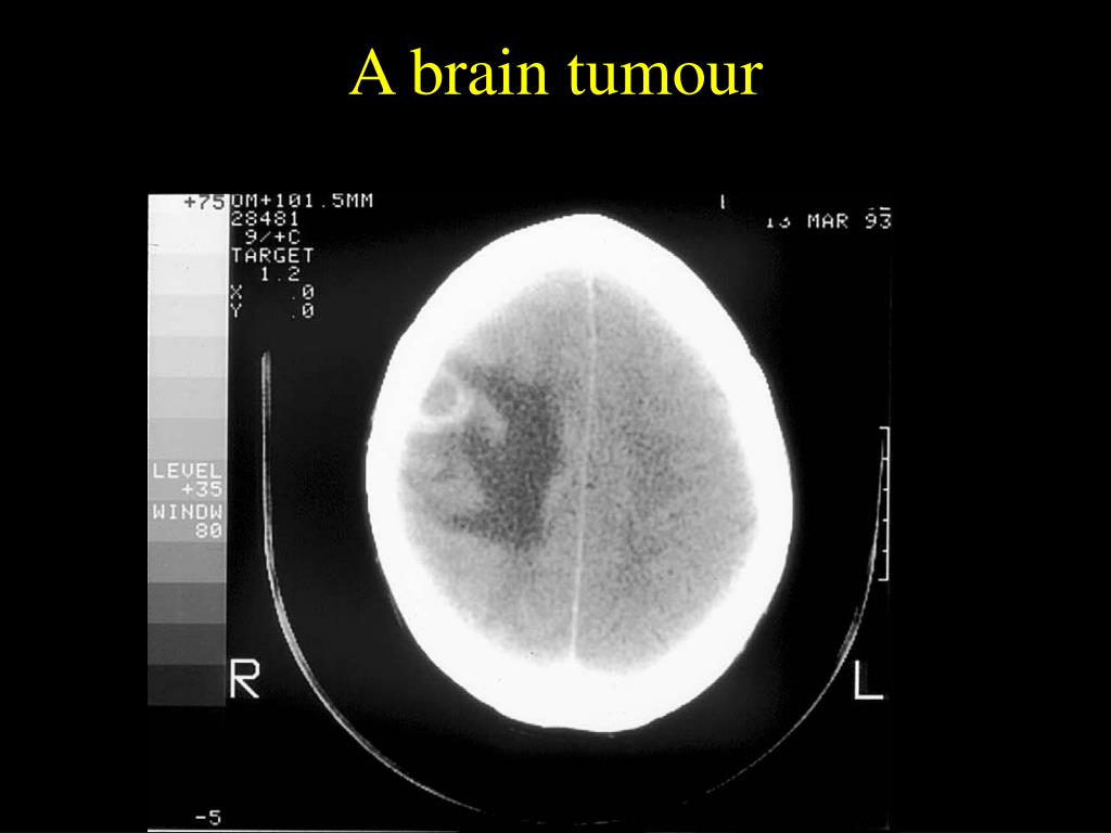 A brain tumour