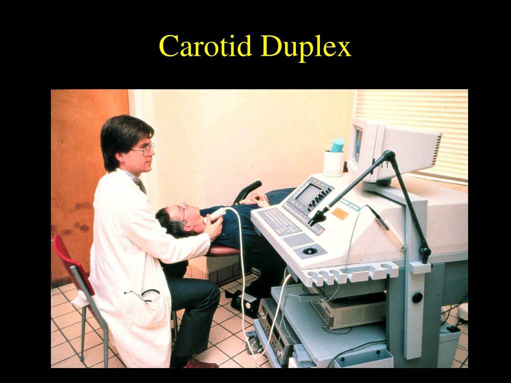 Carotid Duplex