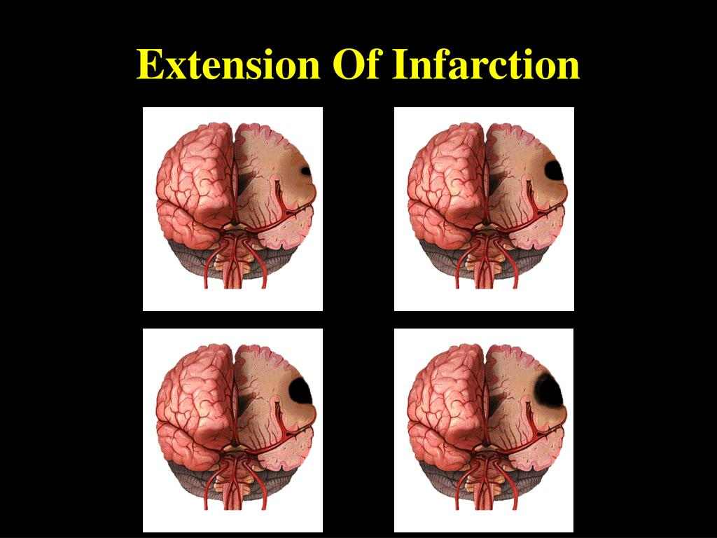 Extension Of Infarction