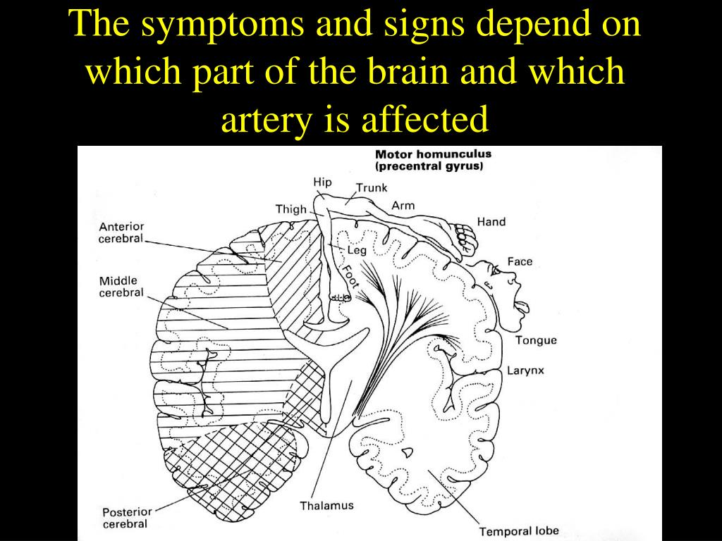 The symptoms and signs depend on which part of the brain and which artery is affected