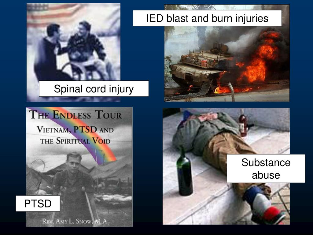 IED blast and burn injuries