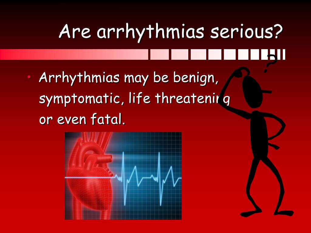 Are arrhythmias serious?