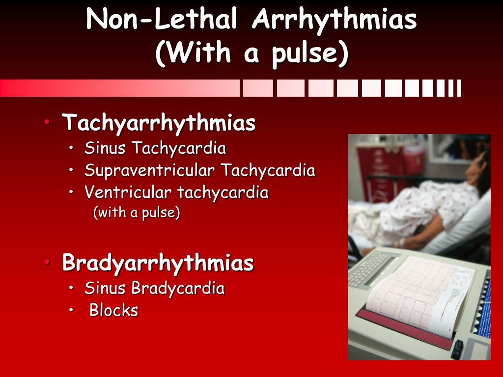 Non-Lethal Arrhythmias