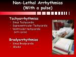 non lethal arrhythmias with a pulse