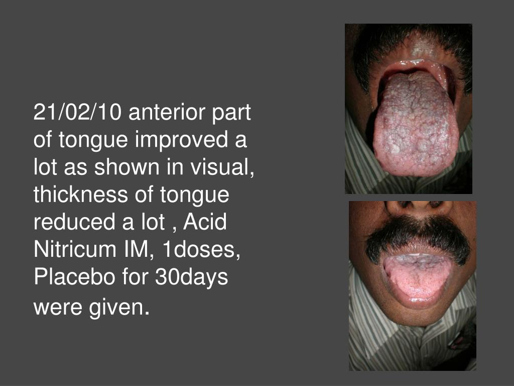 21/02/10 anterior part of tongue improved a lot as shown in visual, thickness of tongue reduced a lot , Acid Nitricum IM, 1doses, Placebo for 30days were given