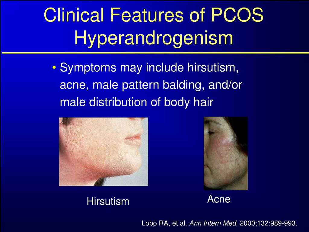 Clinical Features of PCOS